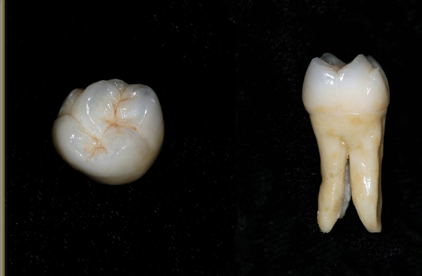 Zirconia Layer 6