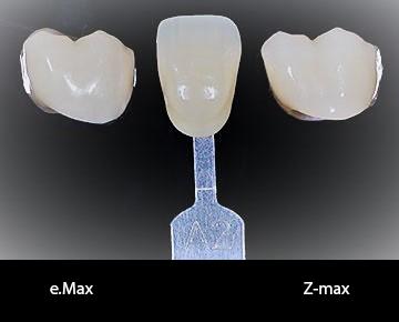 Zmax-Emax-Copy