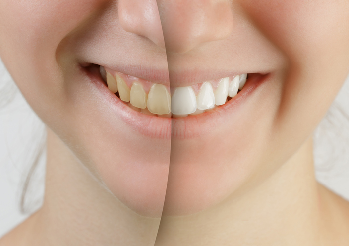 teen girl smile before and after teeth whitening, close up