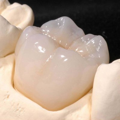 Preparation Guidelines for Full Zirconia Crowns