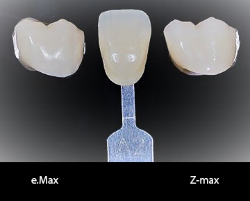 Zirconia: Helpful Information for Dentists